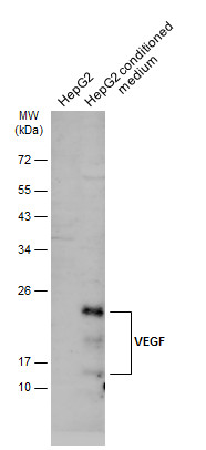 HepG2 whole cell extract and conditioned medium (30 μg) were separated by 12% SDS-PAGE, and the membrane was blotted with VEGF antibody (GRP480) diluted at 1:500. The HRP-conjugated anti-rabbit IgG antibody  was used to detect the primary antibody.