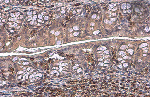 Vimentin antibody detects Vimentin protein at cytoplasm by immunohistochemical analysis.Sample: Paraffin-embedded mouse colon.Vimentin stained by Vimentin antibody (GRP465) diluted at 1:500.Antigen Retrieval: Citrate buffer, pH 6.0, 15 min