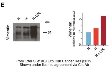 The WB analysis of Vimentin antibody was published by Offer S and colleagues in the journal J Exp Clin Cancer Res in 2019 .
