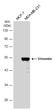 Various whole cell extracts (30 μg) were separated by 10% SDS-PAGE, and the membrane was blotted with Vimentin antibody (GRP465) diluted at 1:10000. The HRP-conjugated anti-rabbit IgG antibody  was used to detect the primary antibody.
