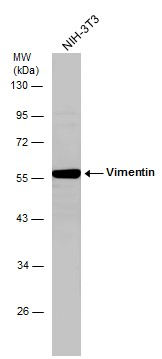 Whole cell extract (30 μg) was separated by 10% SDS-PAGE, and the membrane was blotted with Vimentin antibody (GRP465) diluted at 1:2000.