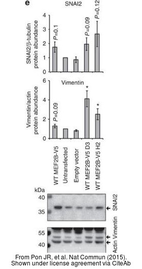 The WB analysis of Vimentin antibody was published by Pon JR and colleagues in the journal Nat Commun in 2015.PMID: 26245647