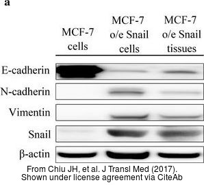The WB analysis of Vimentin antibody was published by Chiu JH and colleagues in the journal J Transl Med in 2017.PMID: 28472954