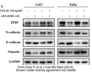 The WB analysis of Vimentin antibody was published by Diao P and colleagues in the journal J Cell Mol Med in 2019 .