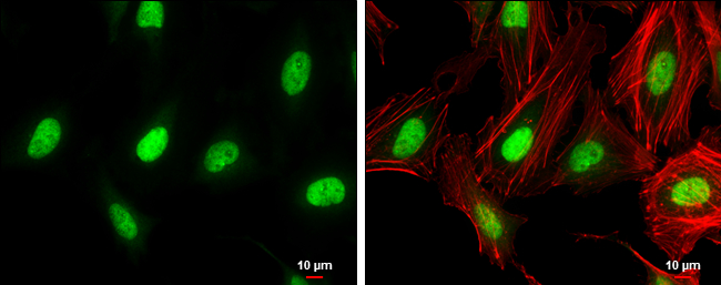 ZEB1 antibody [N2C1], Internal detects ZEB1 protein at nucleus by immunofluorescent analysis.Sample: HeLa cells were fixed in 4% paraformaldehyde at RT for 15 min.Green: ZEB1 protein stained by ZEB1 antibody [N2C1], Internal (GRP490) diluted at 1:500.Red:
