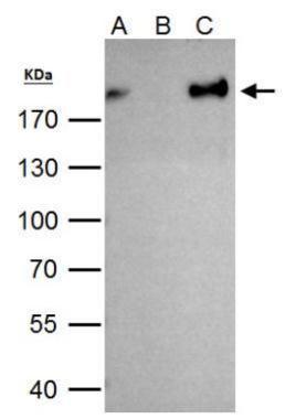 ZEB1 antibody immunoprecipitates ZEB1 protein in IP experiments. IP Sample: 293T whole cell lysate/extract  A. 40 ?g 293T whole cell lysate/extract B. Control with 2 ?g of preimmune rabbit IgG C. Immunoprecipitation of ZEB1 protein by 2 ?g of ZEB1 antibod