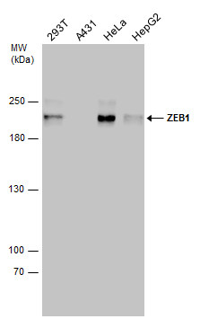 Various whole cell extracts (30 μg) were separated by 5% SDS-PAGE, and the membrane was blotted with ZEB1 antibody [N2C1], Internal (GRP490) diluted at 1:1000. The HRP-conjugated anti-rabbit IgG antibody  was used to detect the primary antibody.